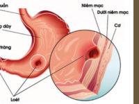 Nguyên nhân, Triệu chứng, Viêm loét dạ dày – Tá tràng & cách chữa trị bệnh